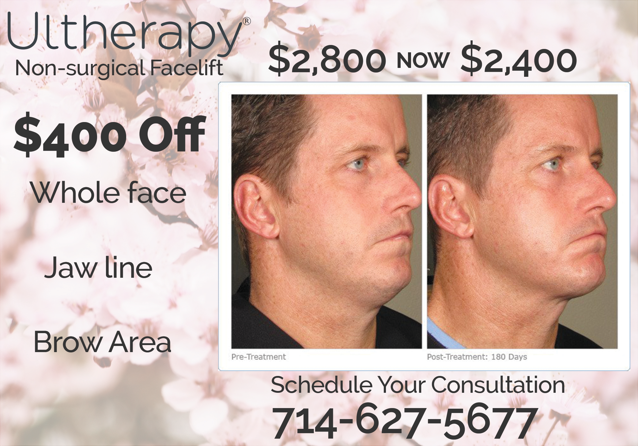 Clinical Aesthetics Ultherapy