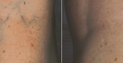 laser-vein-therapy2