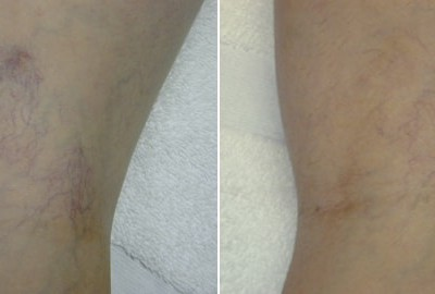 laser-vein-therapy3