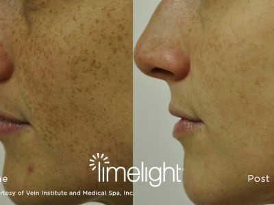 xeo-limelight-before-after1