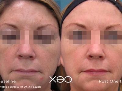 xeo-limelight-before-after2