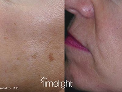 xeo-limelight-before-after3